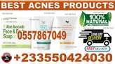 best Acnes CREAMS In Kumasi - Ghana
